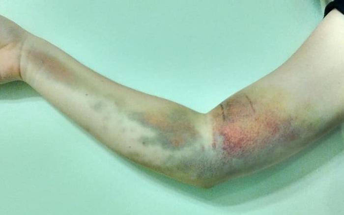 Đi hiến máu, cô gái 17 tuổi mắc phải căn bệnh mãn tính hiếm gặp khiến tay phải bị tàn phế