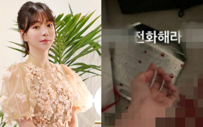 Top 1 Naver: Hôn thê tài phiệt gây sốc khi cắt cổ tay sau 1 năm bị bắt cùng Yoochun vì dùng ma tuý đá
