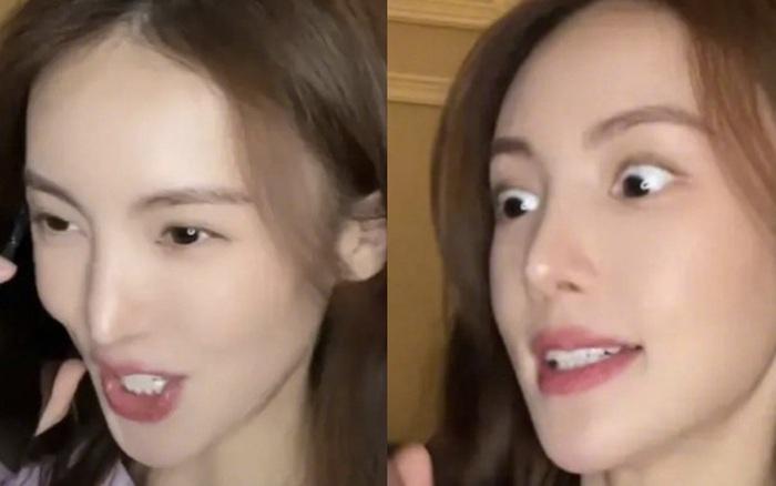 """Cbiz thêm 1 ca gây sốc vì hình ảnh """"bất thường"""": Tình cũ Đặng Luân lộ chiếc mũi nhọn hoắt trên sóng livestream"""