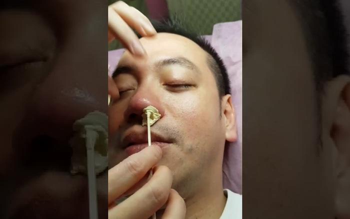 Nhổ lông mũi, nam thanh niên tử vong vì bị viêm màng não