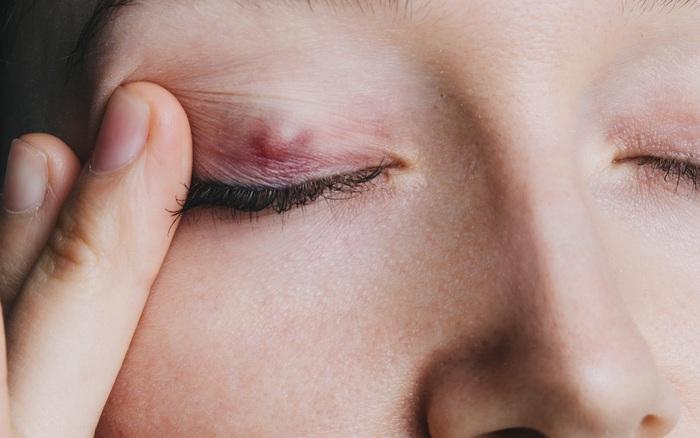 Sáng ngủ dậy gặp 4 điều bất thường thì rất có thể sức khỏe của bạn đang bị đe dọa