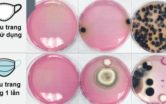 """Khẩu trang  """"bẩn khủng khiếp"""" sau 12 giờ sử dụng: Vi khuẩn, nấm mốc bu kín cho thấy dùng xong nên vứt đi luôn, không nên tiếc rẻ giữ lại"""