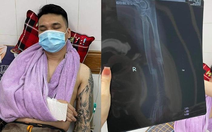 Khắc Việt nhập viện cấp cứu vì gãy tay, tạm thời cầm máu và bó nẹp chờ lên bàn mổ