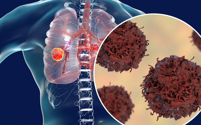 15 bộ phận trên cơ thể dễ bị ung thư nhất, người trẻ hãy cảnh giác