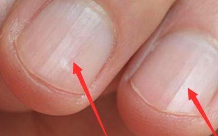 Không phải xem chỉ tay, nhìn móng tay của mình thuộc loại nào trong 7 kiểu dưới đây sẽ giúp bạn đoán được sức khỏe của bản thân