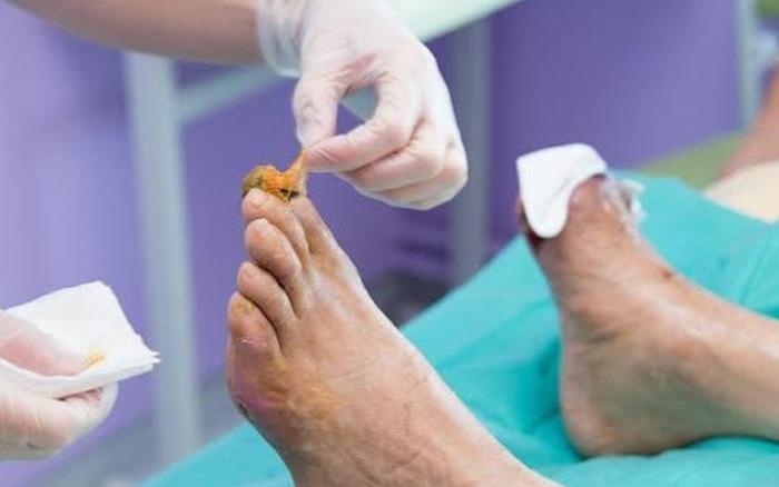 4 hiện tượng bất thường ở chân cho thấy đường trong máu bạn đang tăng cao, không khám chữa nhanh sẽ đối mặt với đột quỵ và loạt bệnh nguy hiểm