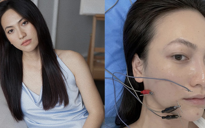 Nữ diễn viên Vbiz chia sẻ bị bệnh tuyến giáp, hoảng vì tê cứng và méo khung môi - kết quả vietlott 09022020