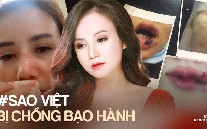 """Trước """"cô Xuyến"""" Hoàng Yến, loạt sao Việt từng bị chồng bạo hành dã man: Dương Yến Ngọc chịu đánh 2-3 lần/ tuần, 1 Hoa hậu còn muốn tự tử"""