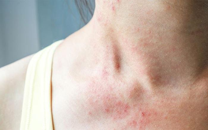 4 biểu hiện bất thường trên da là dấu hiệu sớm của bệnh ung thư gan, cần chủ động đi khám ngay khi gặp phải
