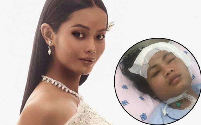 Cập nhật hình ảnh của học trò Minh Tú sau ca phẫu thuật vì viêm màng não