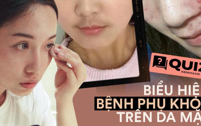 Quiz: Phụ nữ mắc bệnh phụ khoa thường có 4 biểu hiện trên khuôn mặt, nếu bạn không có thì xin chúc mừng