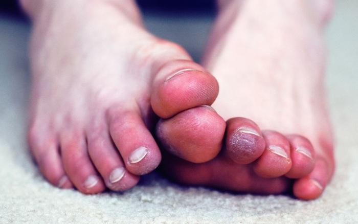 5 triệu chứng ở chân cho thấy cơ thể bạn đang trên đà lão hóa, mắc phải dù chỉ 1 cái cũng đã rất đáng lo