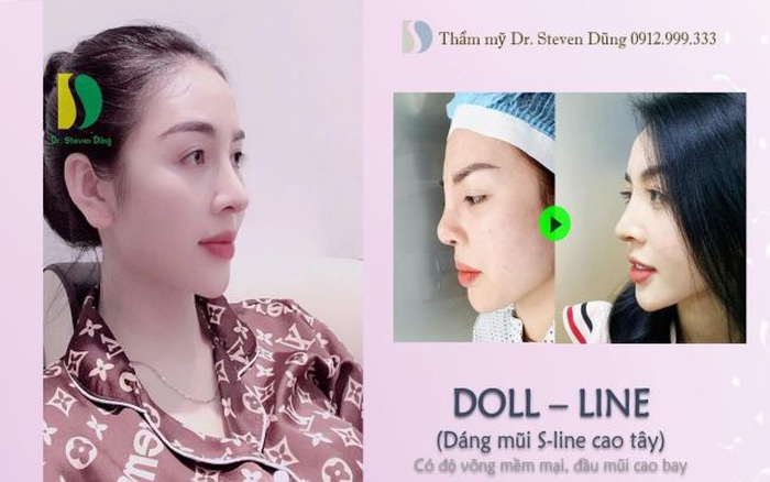 Nâng mũi Doll - line: Trào lưu thẩm mỹ đang cực hot hiện nay